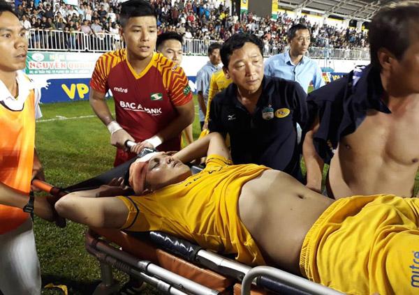 Trung vệ SLNA ngất lịm vì mất nhiều máu khi va chạm với Đông Triều - HAGL