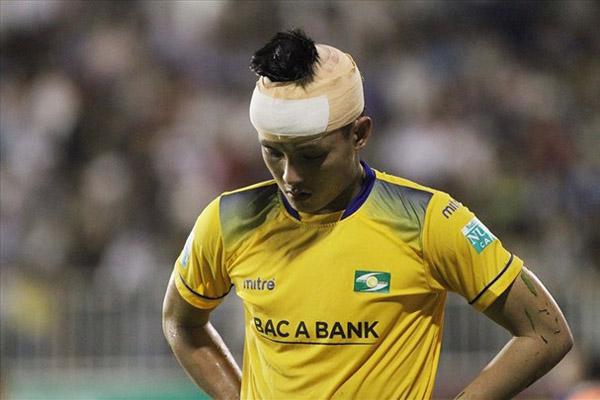Phải khâu 15 mũi trên đầu, Hoàng Văn Khánh lỡ đại chiến với Hà Nội FC trên sân Vinh