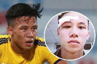 Quế Ngọc Hải chia sẻ ảnh chấn thương trên mạng xã hội khiến fan xứ Nghệ xót xa